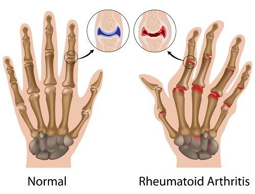 artrita carpului cel mai bun din dureri articulare