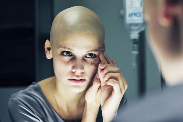 chimioterapia durerii articulare