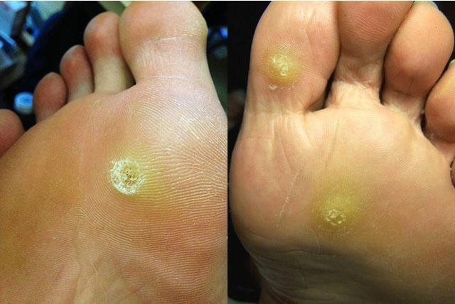 ce medicamente ameliorează inflamațiile genunchiului boli ale articulațiilor degetelor picioarelor