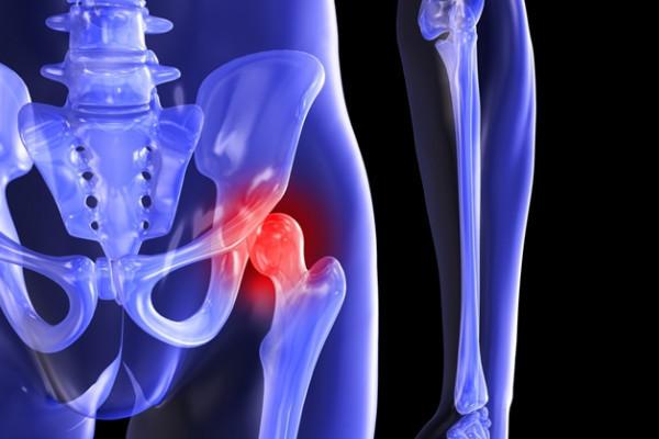 matricea durerii articulare șold articular foarte dureros