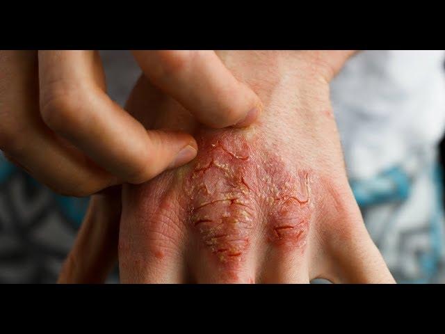 alergii inflamatii articulare
