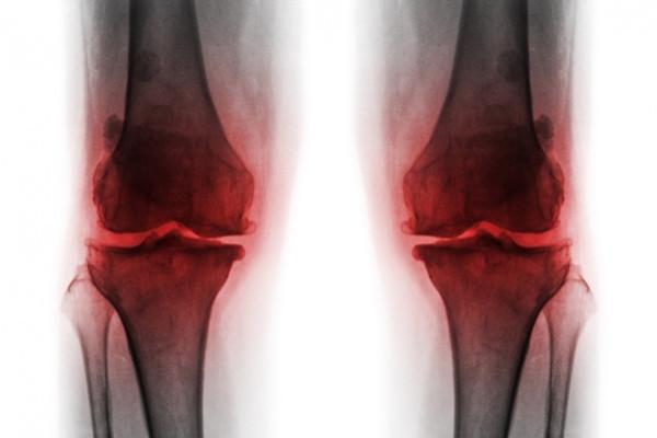 artroza articulațiilor mici ale mâinilor și picioarelor provoacă artroza falangului metatarsian