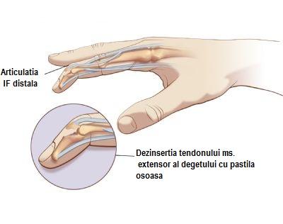 Ketorol pentru dureri în articulația genunchiului inflamație acută a articulației degetului