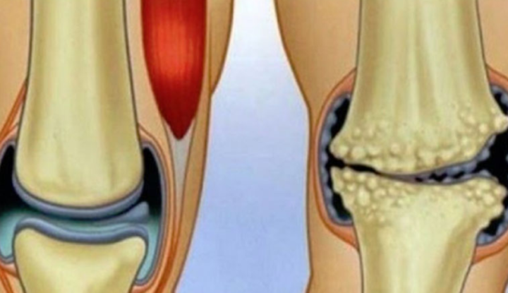 dureri articulare după o mică fractură de deget Dureri musculare la șold tratate