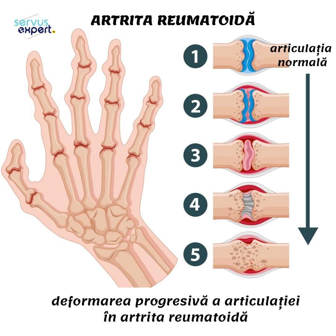luxație în tratamentul articulației genunchiului