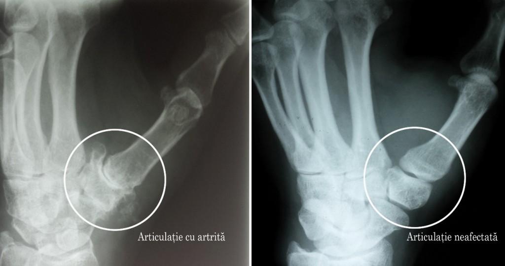 artrita mâinii dureri de genunchi sub sarcină