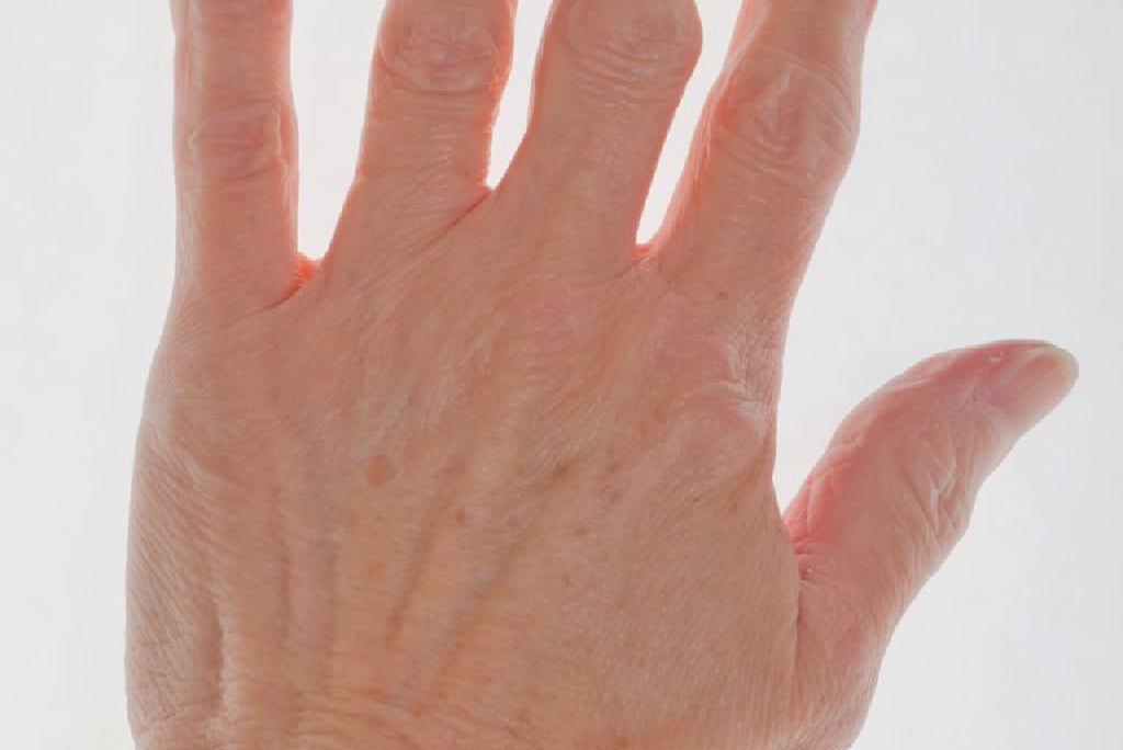 tratamentul articular cu ciul de scroafă articulațiile inflamației piciorului
