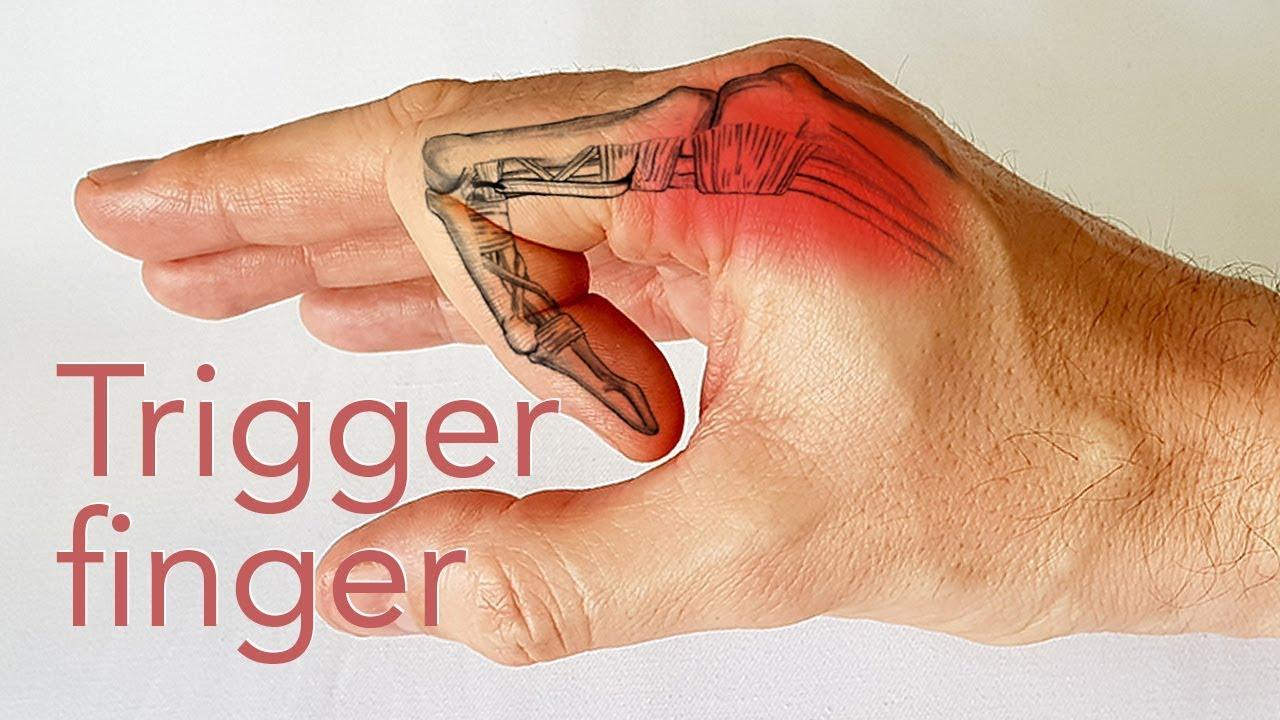 artroza bazei degetului mare cum se tratează cumpăra condroitină glucozamină într-o farmacie