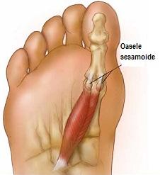 artroza bazei degetului mare cum se tratează recenzii ale durerilor de umăr drept