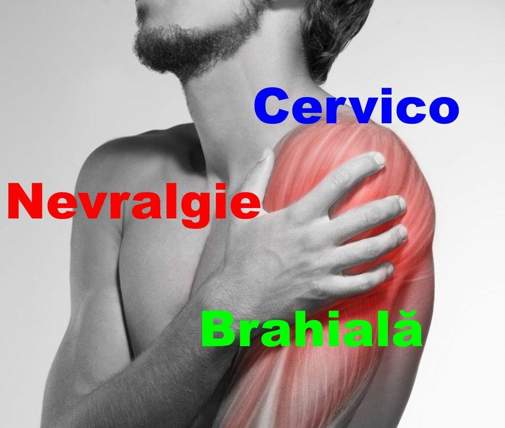 artroza brahială cervicală