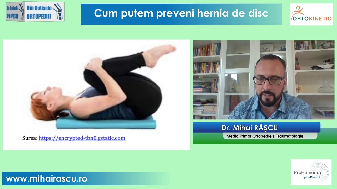 care unguent este mai eficient în tratamentul artrozei