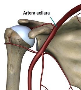 artrita durerii articulare a umărului