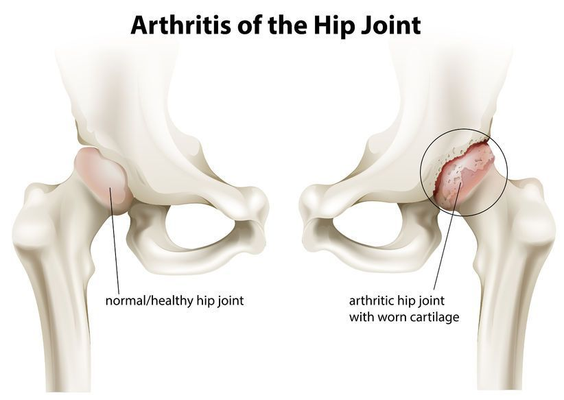 artroza durerii în articulația șoldului drept