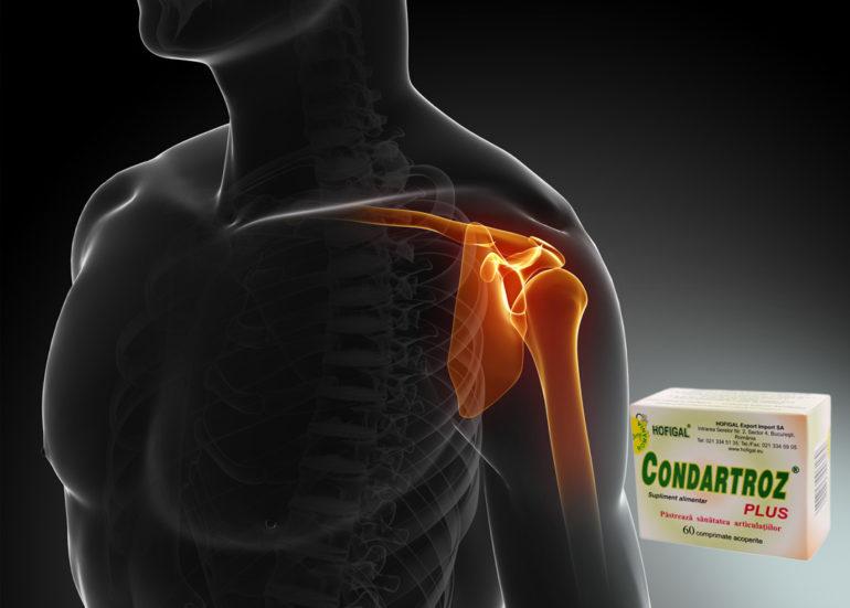 artroza articulației umărului la sportivi