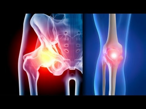 artroza genunchiului 0-1