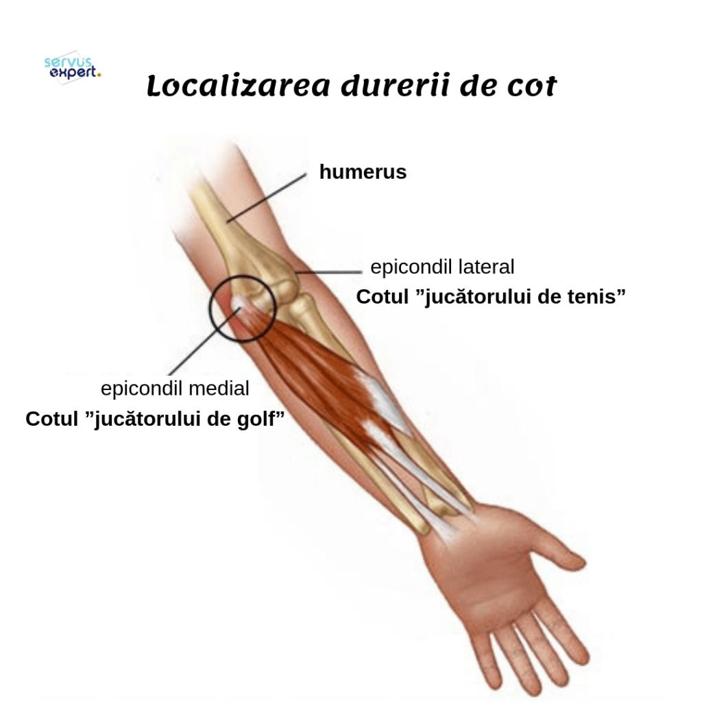 de ce doare brațul stâng în articulație