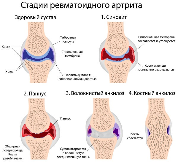 boli profesionale ale articulațiilor picioarelor articulațiile inflamației piciorului