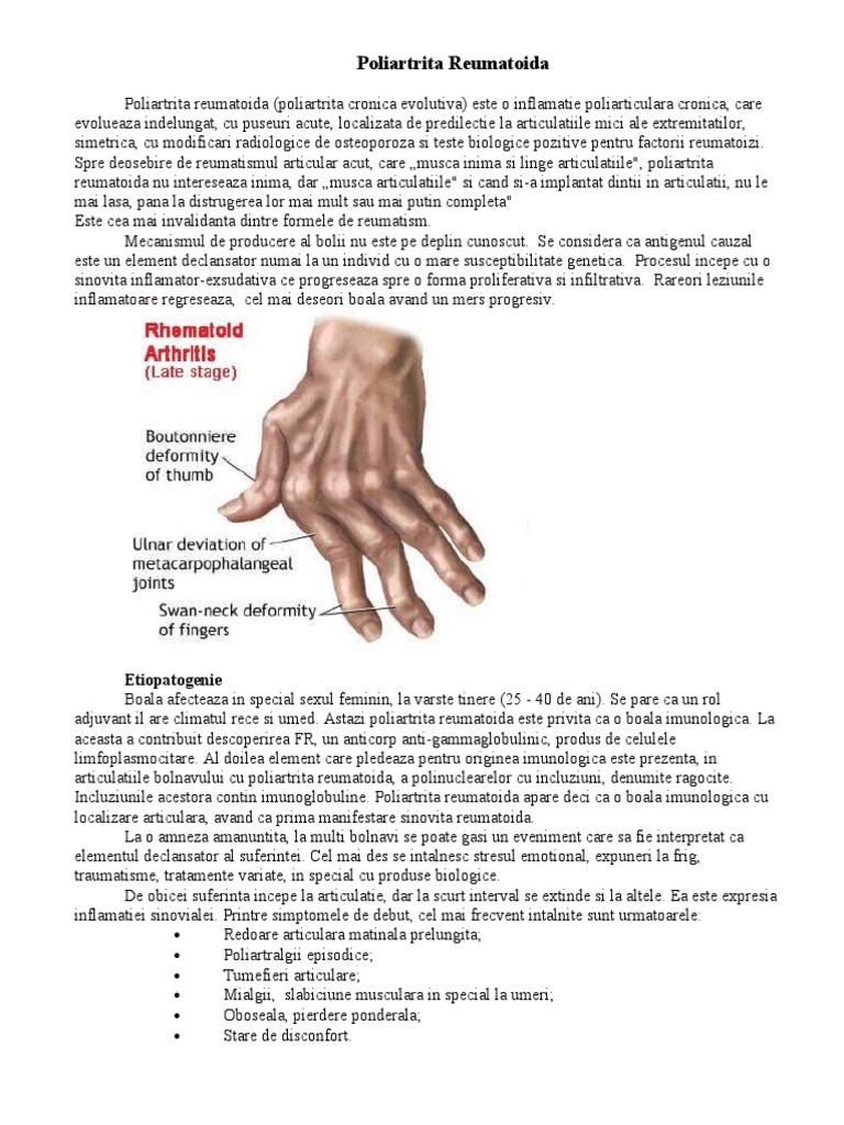artroza posttraumatică a umărului și a genunchiului
