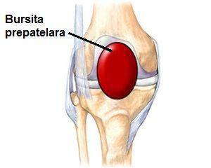 bursita infrapatelară a tratamentului articulației genunchiului drept durere paroxistică în articulațiile picioarelor