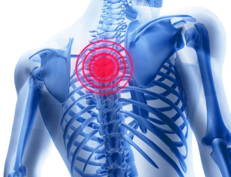 medicamente pentru osteochondroza inferioară a spatelui durere în toate artritele autoimune ale articulațiilor