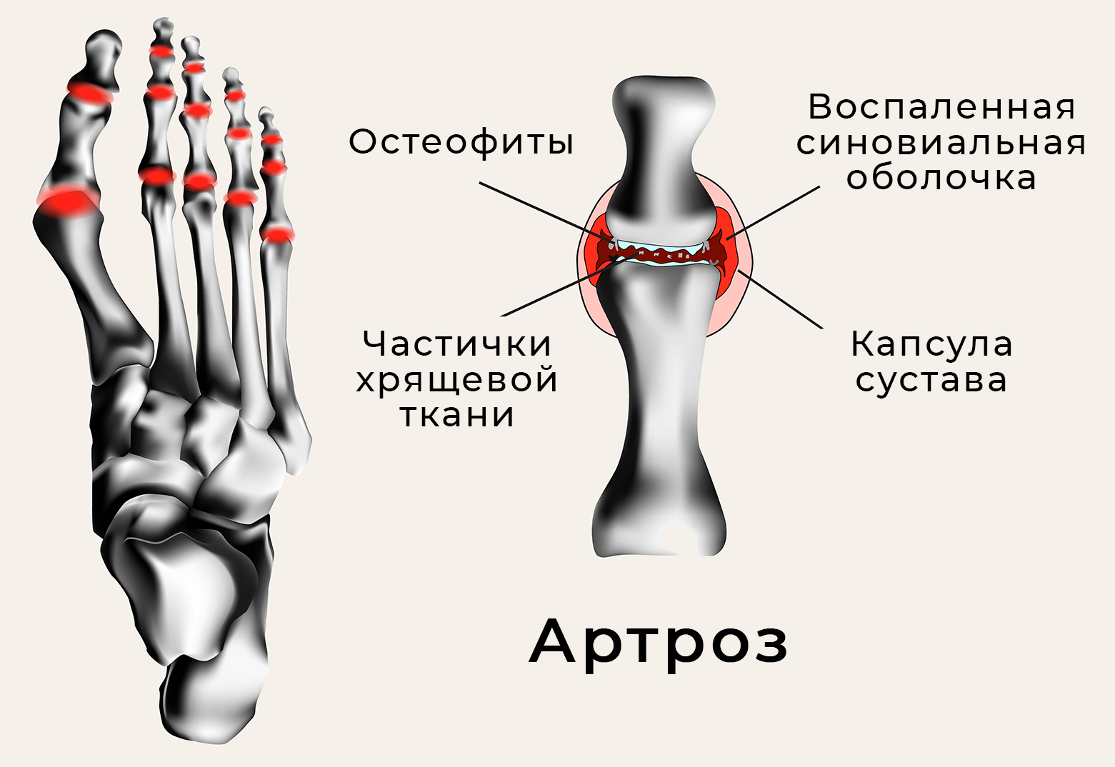 зуд в ноге - Traducere în engleză - exemple în rusă | Reverso Context