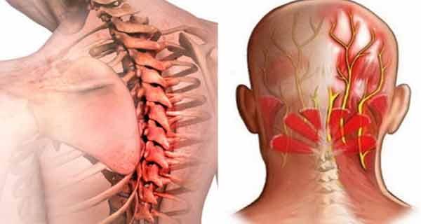 Artrita temporomandibulară