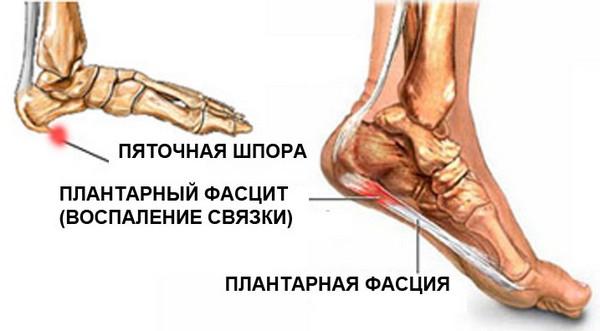 ce să iau dacă rănesc articulațiile picioarelor îmbinări cu zahăr ridicat