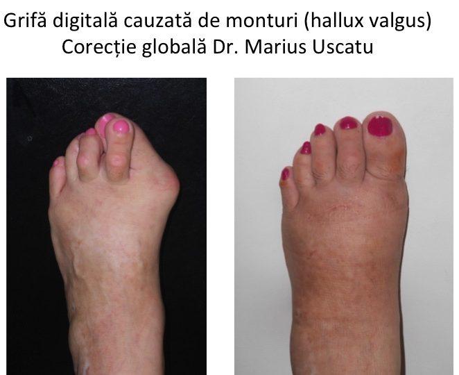 artrita falangelor degetelor de la picioare
