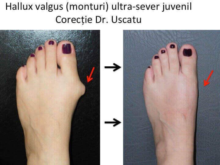 consolidarea tratamentului piciorului