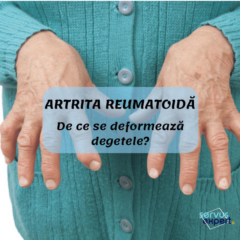 cu artrita reumatoidă a mâinilor tratamentul artrozei în Sol-Iletsk