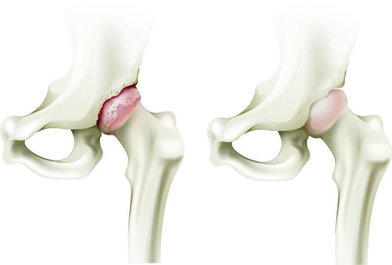 cum să amelioreze artroza articulației șoldului dacă articulația este eliminată cum se tratează