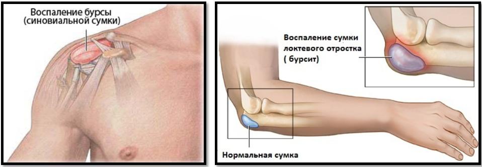 ce se tratează dacă rănesc articulațiile ce medicamente pentru tratarea artritei degetelor