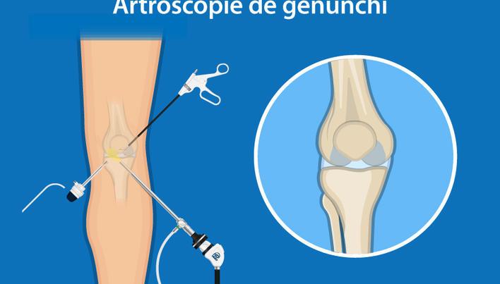 cum să tratezi articulațiile genunchilor cu noile tehnologii medicament bazat pe dovezi pentru tratamentul artrozei