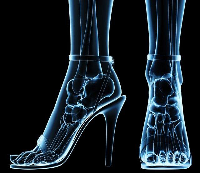 articulațiile de pe tocuri doare ce să facă galbenele pentru tratamentul artrozei
