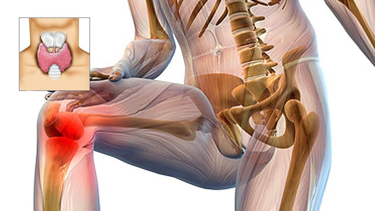 durere în tratamentul unguentului articulației șoldului tratamentul artritei și artrozei cu peroxid de hidrogen