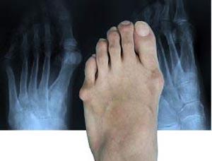 brat si picior stang in articulatie tratamentul artrozei cu ulei de semințe de in
