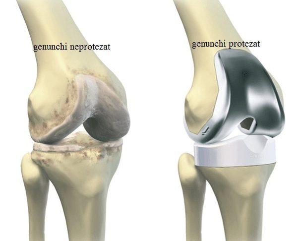 Costul articulației genunchiului, Cel mai puternic calmant de durere pentru articulații