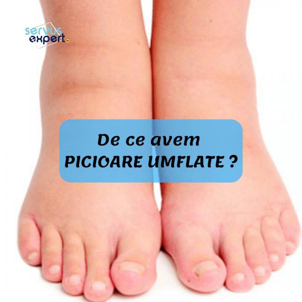 picioare umflate si vinete ce înseamnă bolile articulare