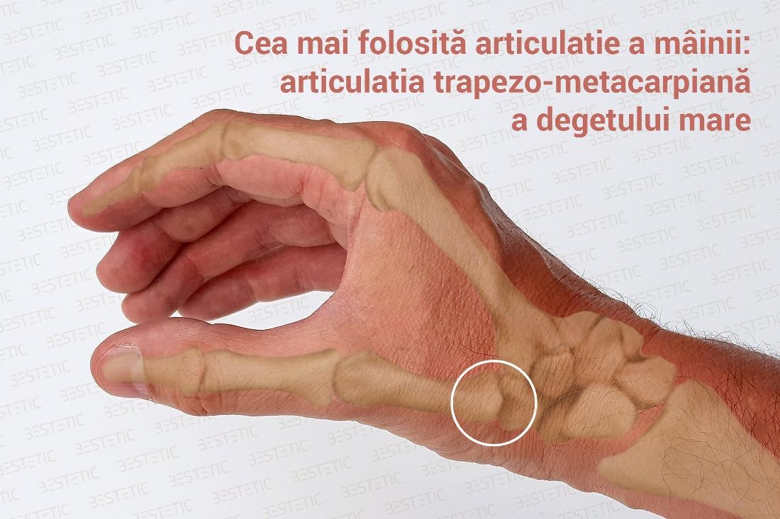 degetul mare pe mână în articulație remedii eficiente pentru tratamentul artrozei genunchiului