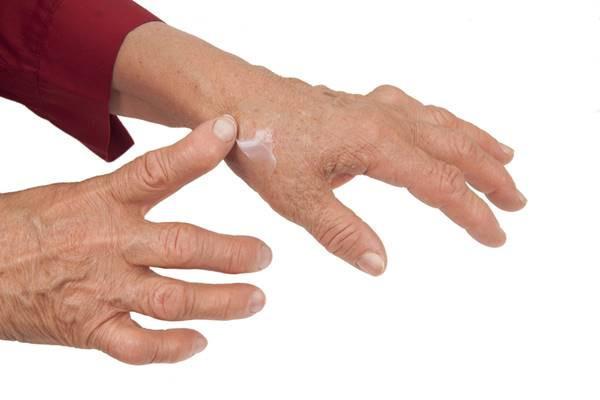 degetul mare pe mână în articulație edemă la genunchi și durere; restricție de mișcare