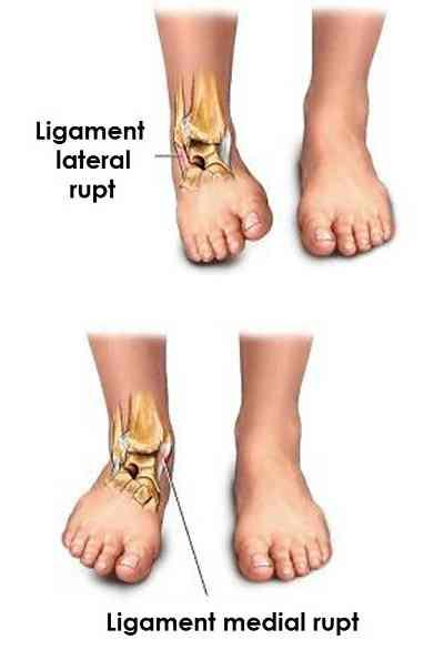 deteriorarea parțială a ligamentului gleznei
