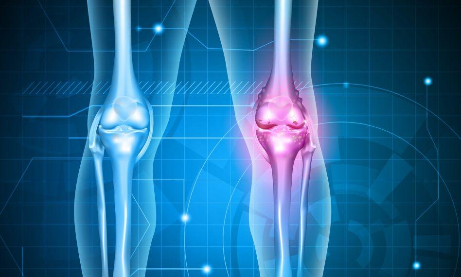 bilă medicală cu artroză a articulației genunchiului cum să amelioreze inflamația cu artrita degetului