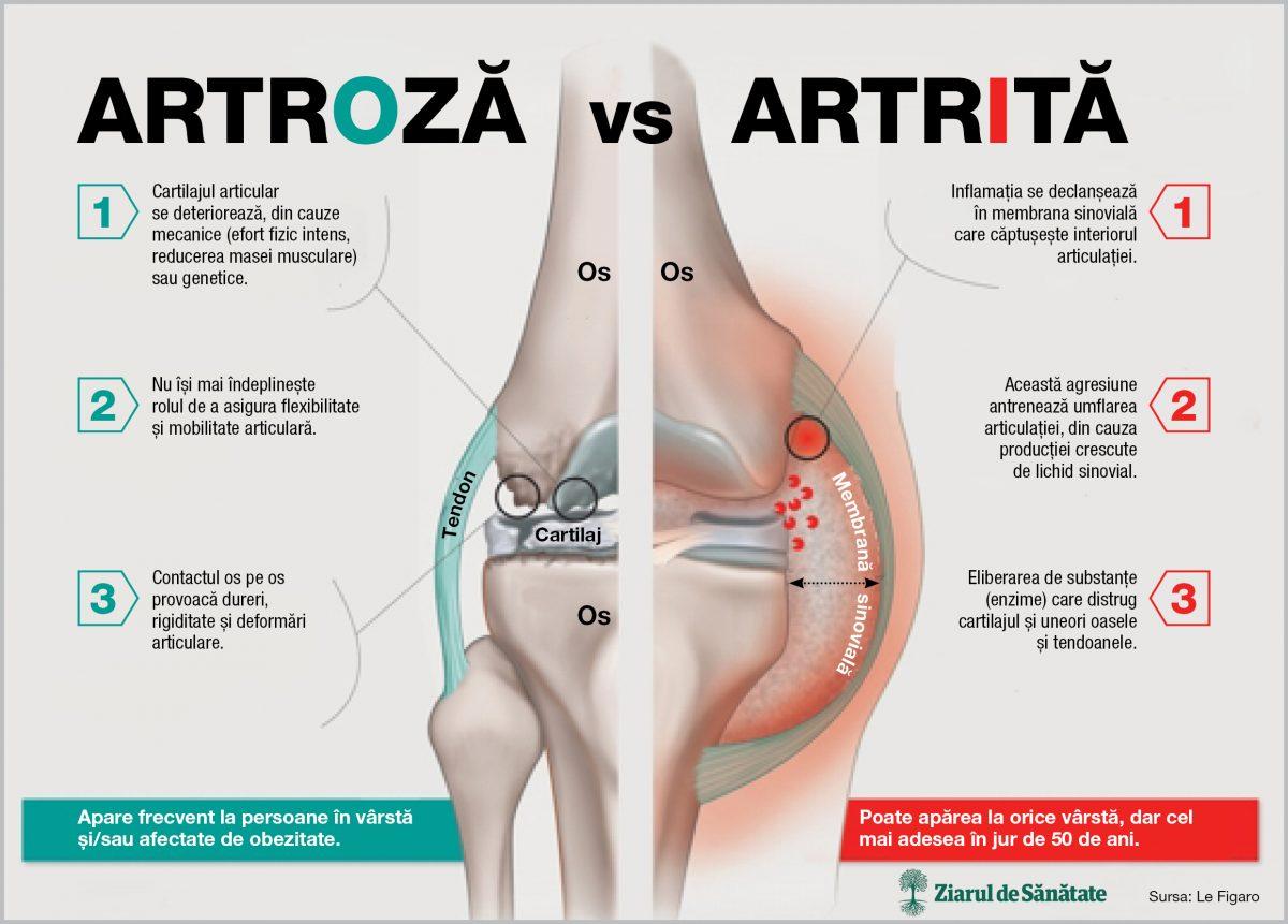 artroza tratamentului și alimentației articulațiilor genunchiului