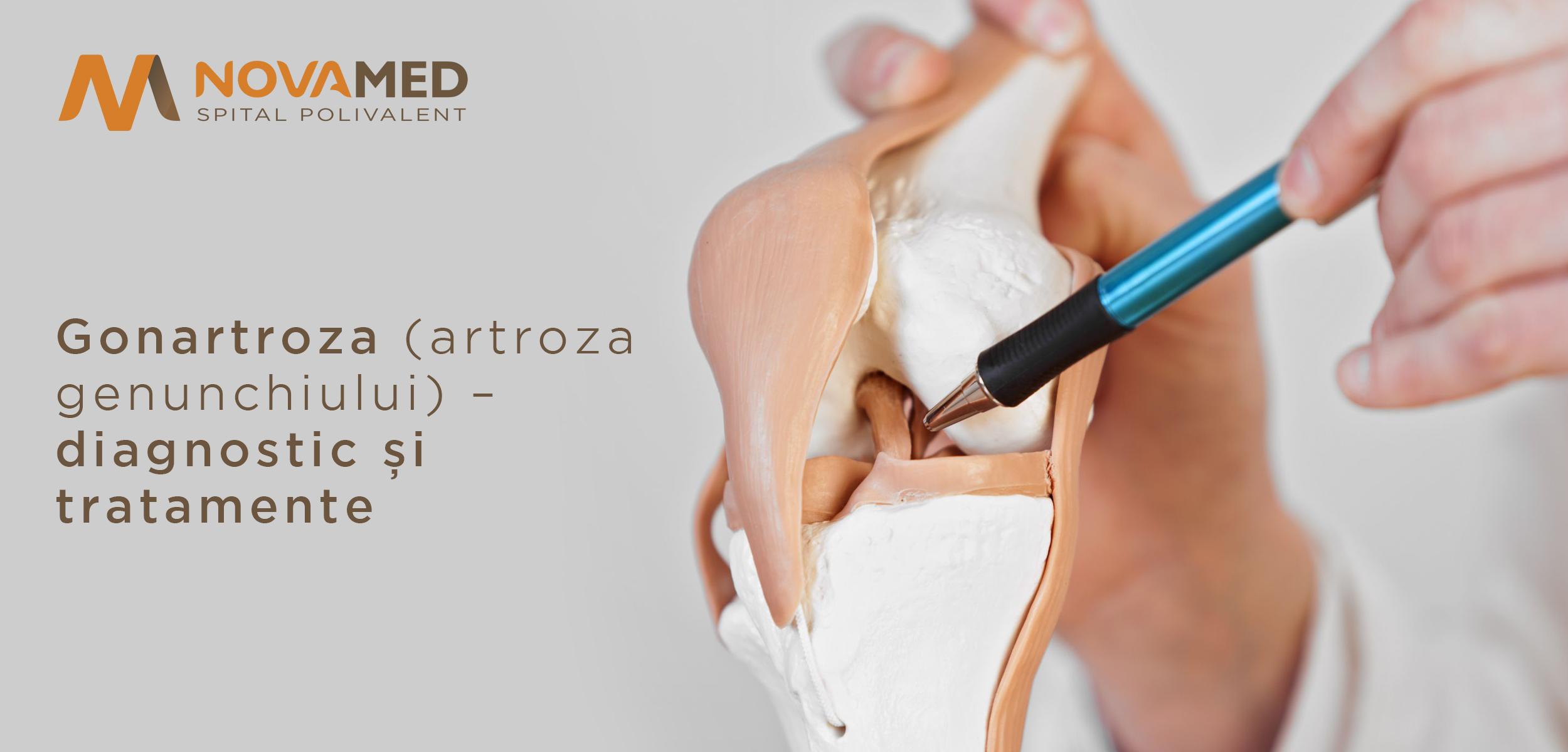 diagnosticul tratamentului artrozei genunchiului ce să bei cu artrita articulațiilor