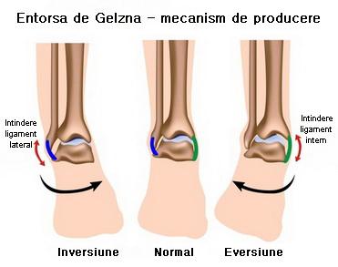 durere și umflare la nivelul articulațiilor gleznei Tratamentul articulațiilor Sukhumi