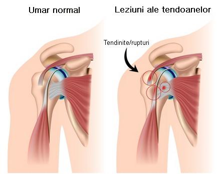 durere la nivelul articulației umărului mâinilor cusături dureri de cot