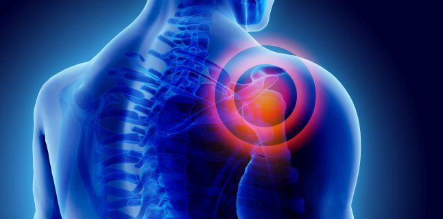 durere oncologică în articulațiile umărului Tratamentul afectării tendoanelor genunchiului