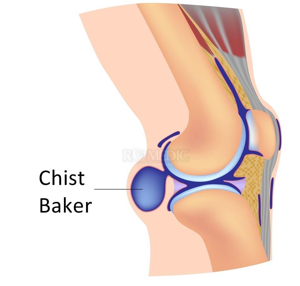 durere pe suprafața interioară a genunchiului unde să tratezi artroza în străinătate