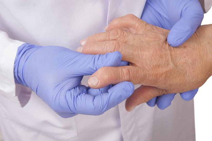 dureri articulare de artrită reumatoidă la ambele mâini ruperea vătămării umărului