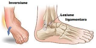 dureri articulare și bara orizontală